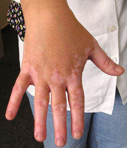 http://cureablevitiligo.edublogs.org/files/2011/06/vitiligo-treatment-1kyvo7u.jpg